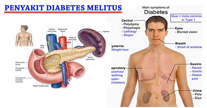 Cara Mencegah Diabetes